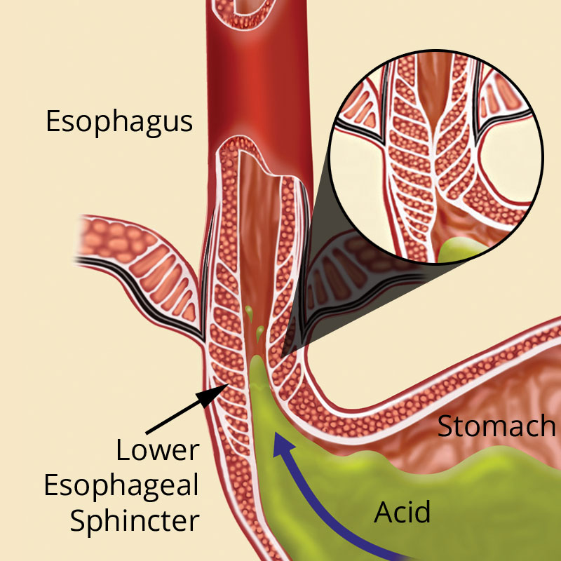 Reflux is caused by a weak muscle called the lower esophageal sphincter (LES) that allows acid and bile to flow back from the stomach into the esophagus, creating pain and often causing damage to the lining of the esophagus.